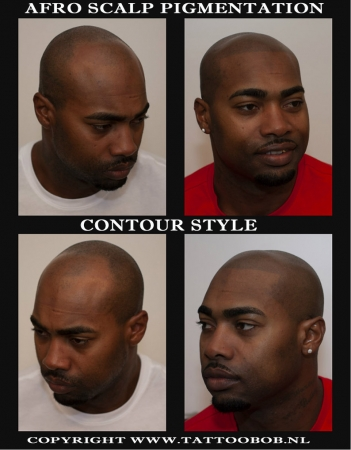 For Dark skin is The afro pigmentation the solution for baldness. Tattoo Bob is the founder of scalp pigmentation for black people.