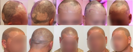 WAT IS ALOPECIA AREATA?