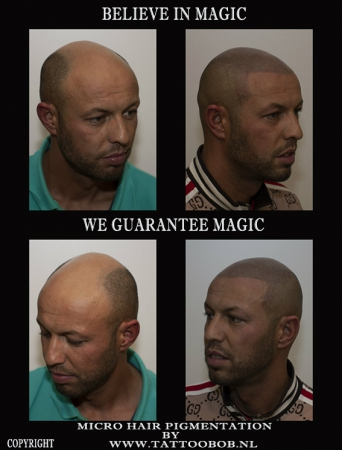 Micro hair pigmentation is the solution for baldness...the best in europe