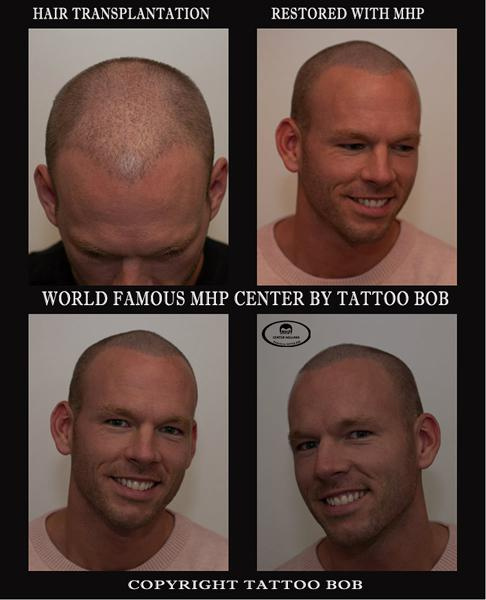 Scalp pigmentatie tattoo bob