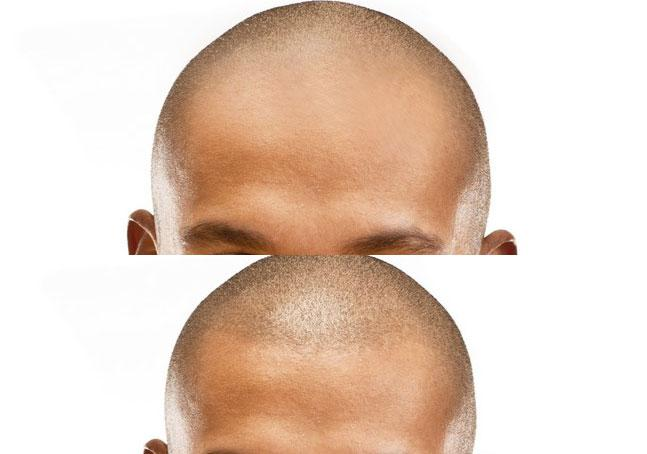 Wat is Micro hair pigmentation ?